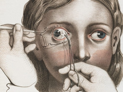 medicalillustration_crucialinterventions-surgery-to-correct-strabismus.jpg0A-